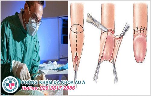 Thực hiện tiểu phẫu cắt bao quy đầu sẽ giúp những nam giới bị dài/ hẹp bao quy đầu thoát khỏi tình trạng xuất tinh sớm
