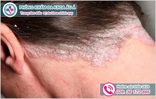Á sừng da đầu: Hình ảnh nguyên nhân dấu hiệu và cách chữa