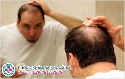 Một số bác sĩ chữa rụng tóc giỏi ở TPHCM