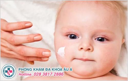 Bạch biến ở trẻ sơ sinh: Nguyên nhân dấu hiệu cách trị