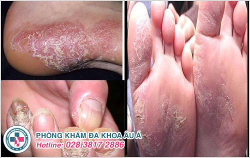 Bệnh á sừng xuất hiện trên da đầu và các ngón tay chân gây nên sưng tấy