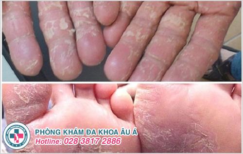 Hình ảnh bệnh á sừng ở tay và chân