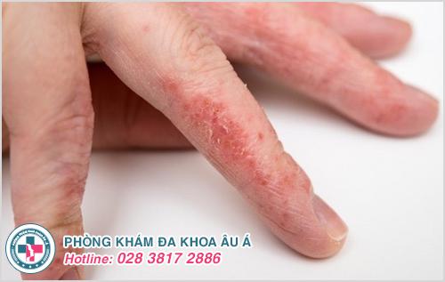 Bệnh chàm khô đầu ngón tay: Nguyên nhân dấu hiệu cách chữa