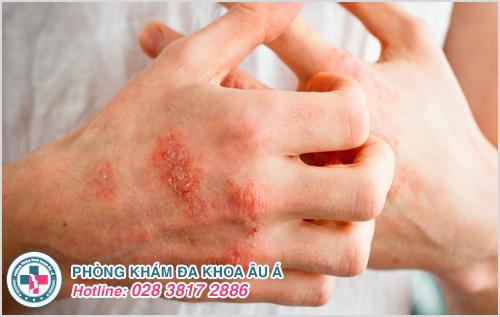 Bệnh chàm là gì? Hình ảnh nguyên nhân dấu hiệu cách chữa