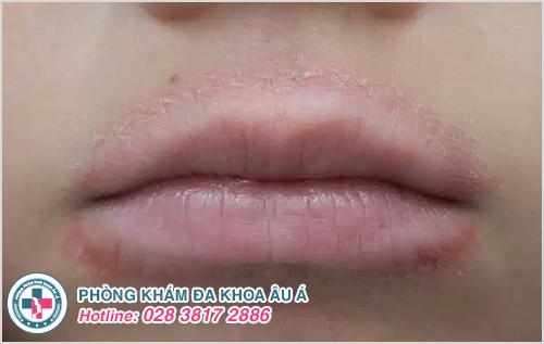 Bệnh chàm môi : Hình ảnh nguyên nhân dấu hiệu cách chữa trị
