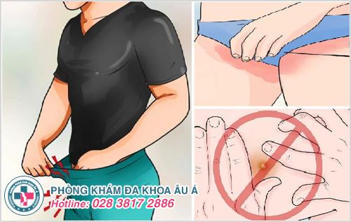 Bệnh chàm ở háng : Nguyên nhân biểu hiện và cách điều trị