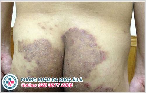Bệnh chàm ở mông : Nguyên nhân dấu hiệu và cách chữa trị