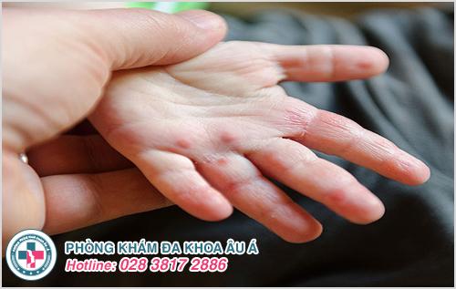 Bệnh chàm ở tay: Hình ảnh nguyên nhân dấu hiệu cách chữa trị