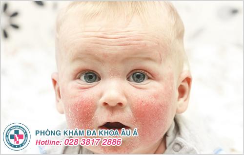 Bệnh chàm ở trẻ em : Nguyên nhân dấu hiệu và cách chữa trị