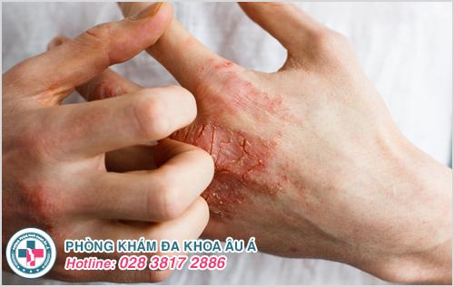 Bệnh chàm vi khuẩn : Hình ảnh nguyên nhân biểu hiện cách trị