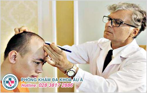 Bệnh chốc đầu ở người lớn : Nguyên nhân dấu hiệu cách chữa