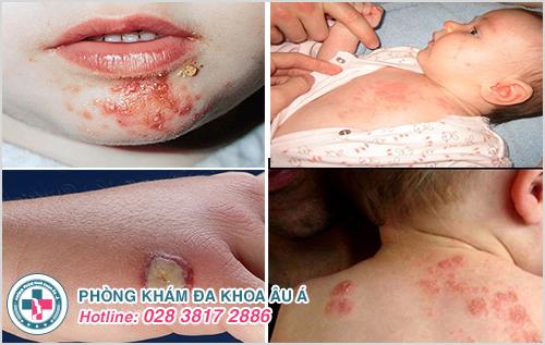 Bệnh chốc ở trẻ em : Nguyên nhân dấu hiệu và cách chữa trị