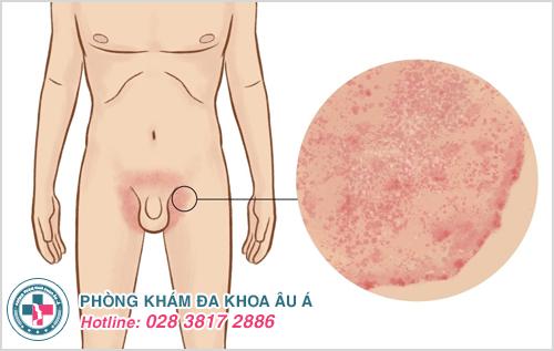 Bệnh da liễu thường gặp ở nam giới và hình ảnh bệnh da liễu