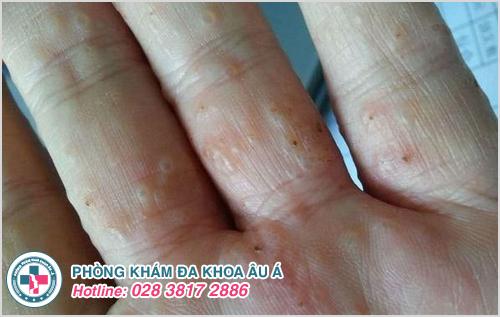 Bệnh ghẻ nước ở tay: Nguyên nhân dấu hiệu và cách chữa trị