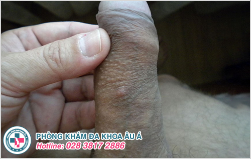 Hình ảnh bệnh ghẻ ở bộ phận sinh dục nam