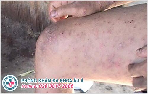 Bệnh ghẻ ruồi: Hình ảnh nguyên nhân biểu hiện cách chữa trị