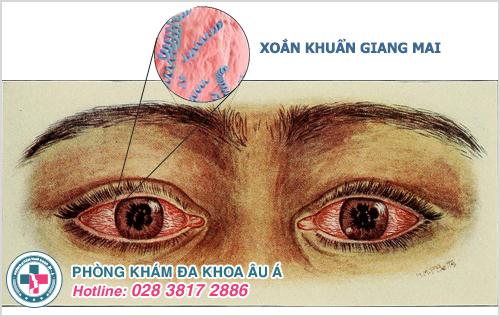 Bệnh giang mai ở mắt: Hình ảnh Nguyên nhân Dấu hiệu Cách chữa