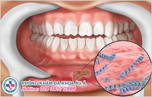 Bệnh giang mai ở miệng: Hình ảnh Nguyên nhân Dấu hiệu Cách chữa
