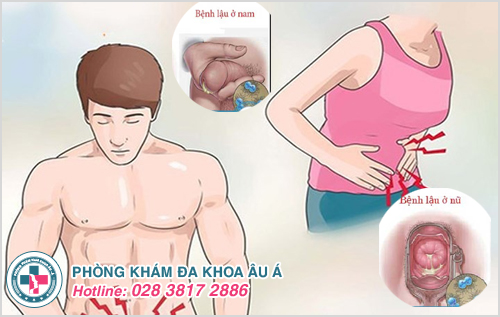 Bệnh lậu có nguy cơ tử vong nếu không tích cực chữa trị