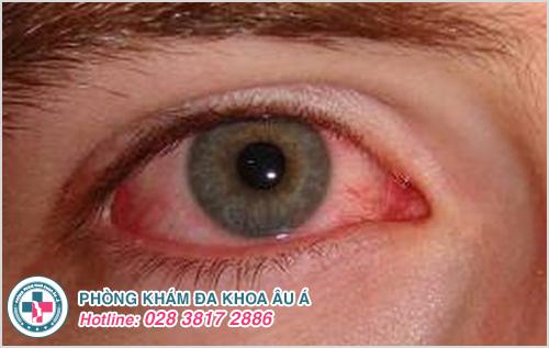 Bệnh lậu ở mắt: Hình ảnh nguyên nhân dấu hiệu và cách chữa
