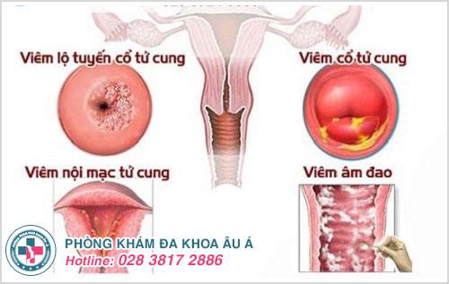 Bệnh phụ khoa ở nữ giới có nguy hiểm không?