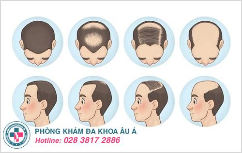 Bệnh rụng tóc: Nguyên nhân Dấu Hiệu và Cách chữa trị