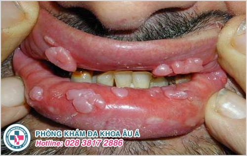 Bệnh sùi mào gà ở môi có những dấu hiệu gì dễ nhận thấy?