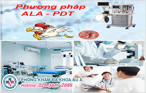 Điều trị phương pháp ALA - PDT tại Phòng Khám Đa Khoa Âu Á hết nỗi lo bệnh sùi mào gà