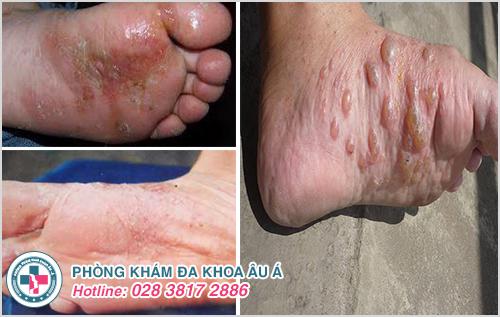 Bệnh tổ đỉa ở chân : Nguyên nhân dấu hiệu và cách chữa trị