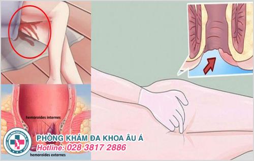 Bệnh trĩ ngoại cấp độ 3 : Nguyên nhân dấu hiệu và cách điều trị