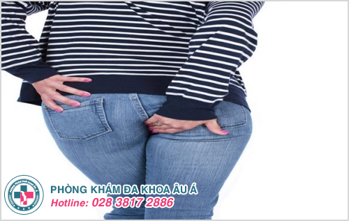 Bệnh trĩ ngoại độ 2 : Nguyên nhân dấu hiệu và cách điều trị