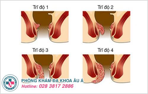 Bệnh trĩ nội là gì ? Hình ảnh nguyên nhân dấu hiệu cách chữa