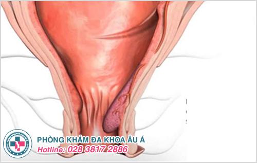 Bệnh trĩ nội độ 1 : Hình ảnh nguyên nhân dấu hiệu cách chữa
