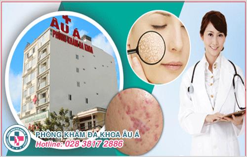 Chi phí khám chữa bệnh da liễu tại bệnh viện Da Liễu Bình Định