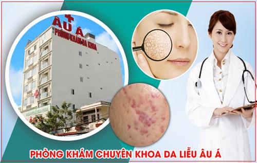 Chi phí khám chữa bệnh da liễu tại bệnh viện Da Liễu Đồng Nai
