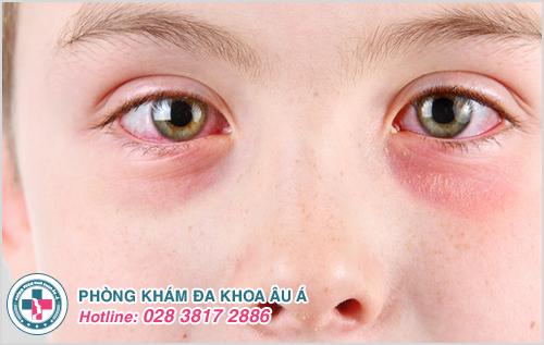 Bệnh zona mắt: Nguyên nhân, biểu hiện và cách chữa trị
