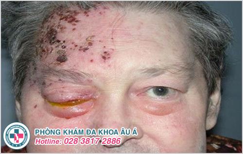 Bệnh zona ngoài da và những điều cần biết để phòng tránh