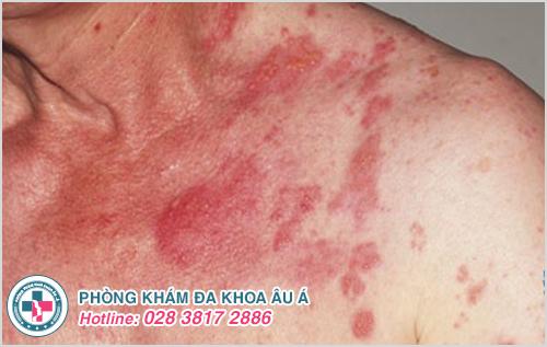 Bệnh zona ở cổ: Hình ảnh nguyên nhân dấu hiệu cách chữa
