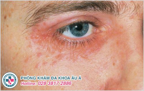 Bệnh zona ở mắt: Hình ảnh nguyên nhân dấu hiệu cách trị