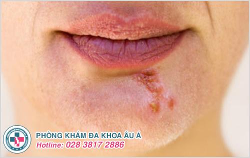 Bệnh zona ở miệng: Hình ảnh nguyên nhân dấu hiệu cách trị