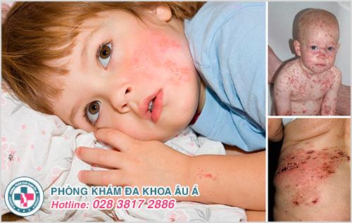 Bệnh zona ở trẻ em: Hình ảnh nguyên nhân dấu hiệu cách trị