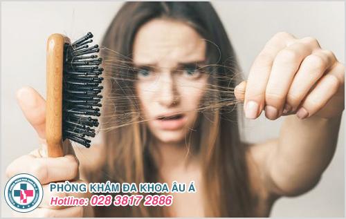 Bị bệnh rụng tóc khám ở đâu tốt TPHCM?