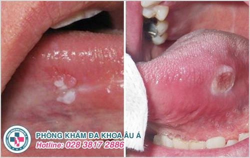 Bị nổi mụn nước dưới lưỡi là dấu hiệu bệnh gì?