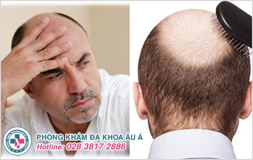 Rụng tóc nhiều ở nam giới là bệnh gì và Cách chữa trị