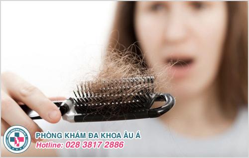 Bị rụng tóc nhiều ở phụ nữ là bệnh gì và Cách chữa trị