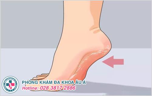 Mồ hôi ở chân quá nhiều cũng là nguyên nhân khiến tróc da ở bàn chân