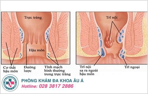 Ảnh minh họa cho bệnh trĩ nội và trĩ ngoại