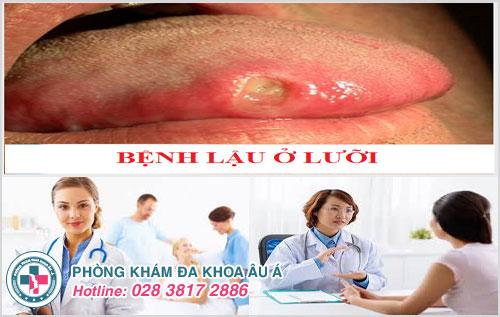Biểu hiện bệnh lậu ở lưỡi và cách điều trị hiệu quả
