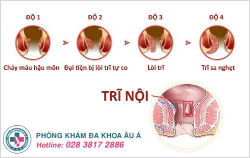 Địa chỉ khám và điều trị bệnh trĩ nội uy tín tại TPHCM