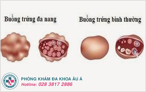 Hình ảnh buồng trứng bình thường và buồng trứng đa nang